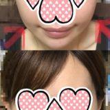韓国で糸リフトしてきました【韓国美容医療体験レポート】