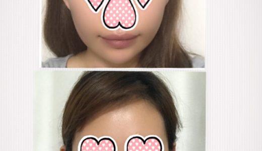【韓国美容医療】韓国で糸リフトをして1か月経ちました~【体験レポート】