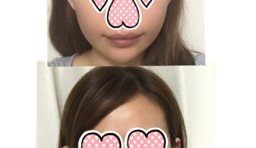 【韓国美容医療レポ】糸リフトをして二ヶ月経過しました【衝撃の展開】