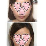 【韓国美容医療レポ】糸リフトの経過+エステサロンでHI-FUも受けてきました【三か月後】