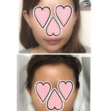 【韓国美容医療レポ】糸リフトの経過【4か月後】